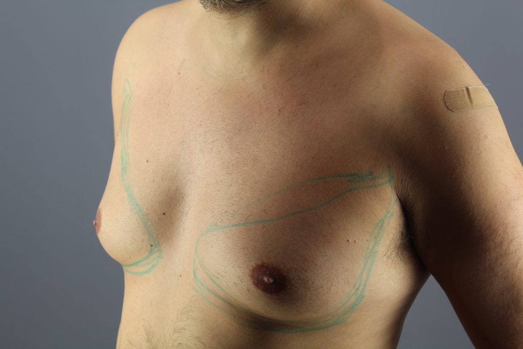 "Gynecomastia, or ""man boobs"" may exert a negative effect on one's self-esteem"