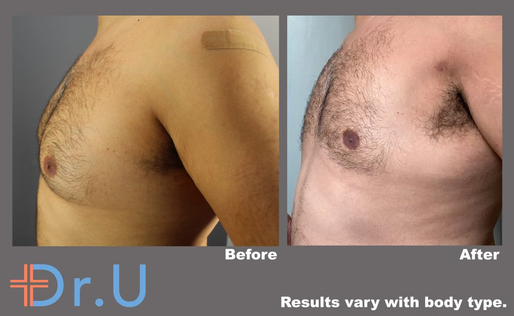 This patient's BodyTite procedure succeeded at flattening this patient's male breasts and ending his struggles with gynecomastia