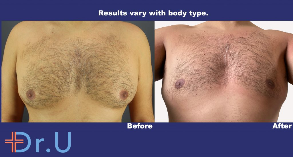 Gynecomastia Removal Results Using Radiofrequency by Dr U With No Linear Scar