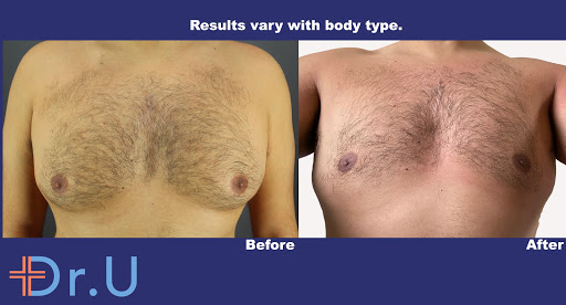 London patient before and after his BodyTite™ gynecomastia procedure at Dr. U Hair and Skin Clinic