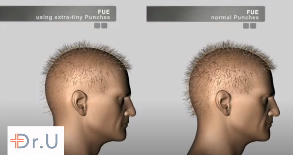 Comparing the results of partial FUE on the left to regular FUE on the right. Partial FUE produces a depleted end appearance.