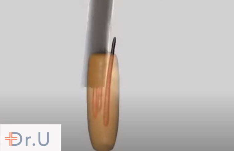 In P-FUE (partial FUE), a tiny hair transplant punch is used to extract a group of hair follicles within a follicular unit grouping.