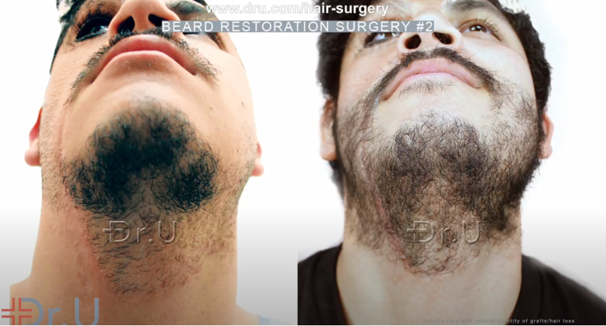 Chin (underside view) of patient's beard restoration results following his second Dr.UGraft Zeus procedure *