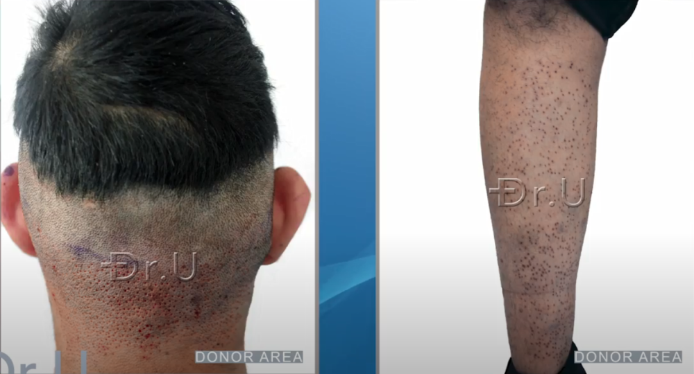 Nape and leg donor regions harvested using Dr.UGraft Zeus supplied the grafts needed to reconstruct the patient's beard