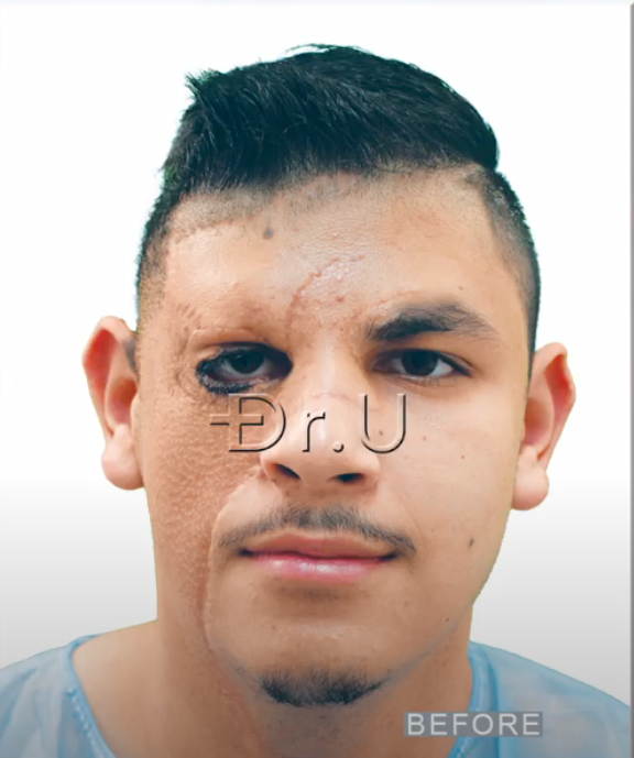 Young Los Angeles patient, featured before his Dr.UGraft Zeus hair transplant procedures, had his congenital nevus replaced by skin grafts taken from his beard and neck area.