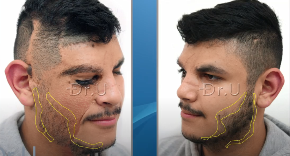 Yellow markings illustrate Dr.U's planning for the new beard contours on the right side which would mirror the left side of the patient's face