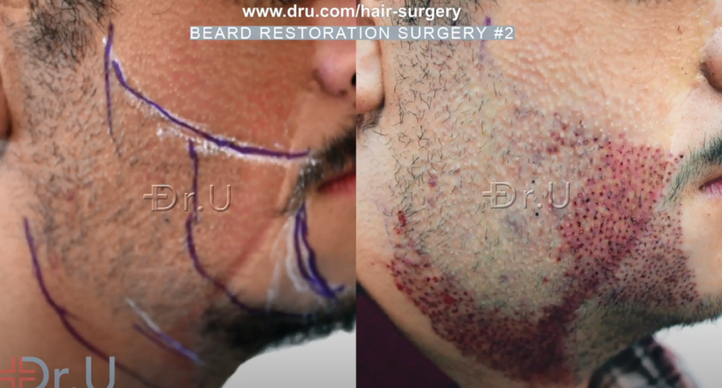 Dr.U outlines specific regions for inserting leg and nape donor grafts to complete the patient's final beard reconstruction results *