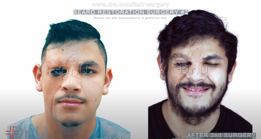 Patient shown before his beard restoration and after his second procedure