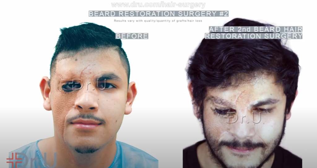 Patient's final beard reconstruction results helps camouflage the seams of his skin graft inserted on the right side of his face