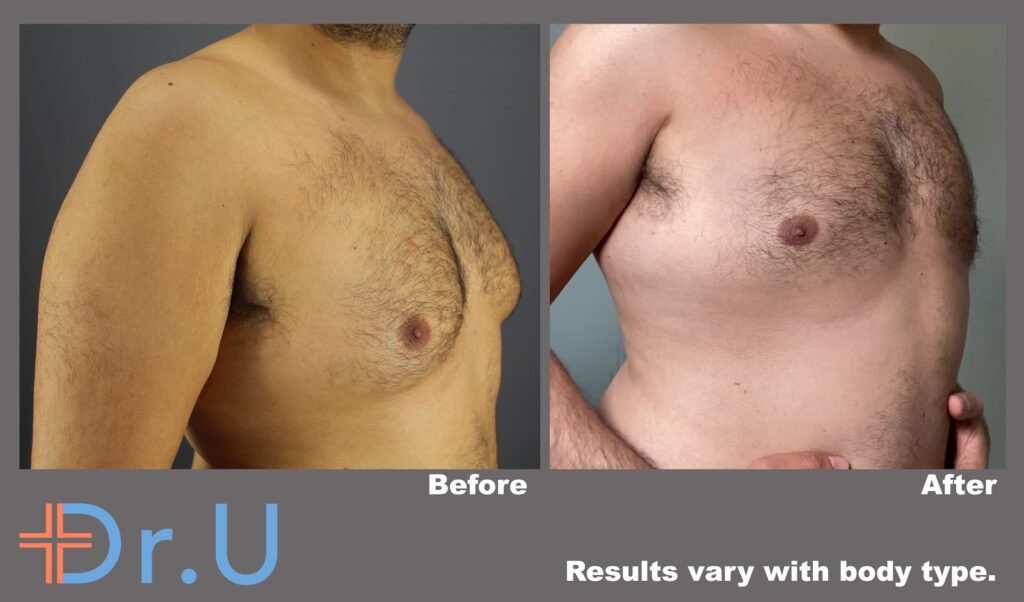 Three-quarters view reveals a drastic reduction in the protrusion of male breast tissue due to this patient's BodyTite procedure.