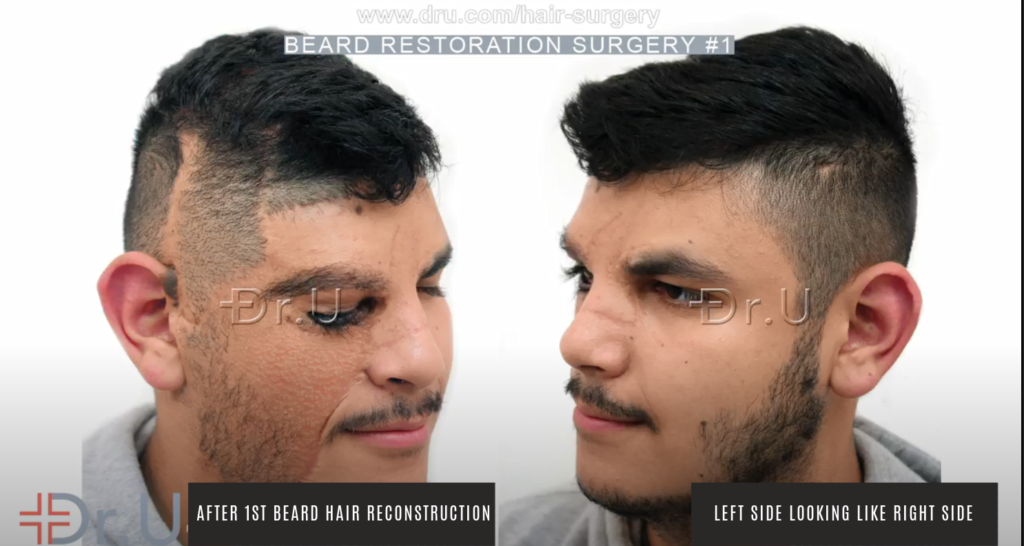 Patient's results following first procedure to recreate the basic beard shape seen on the left side of his face