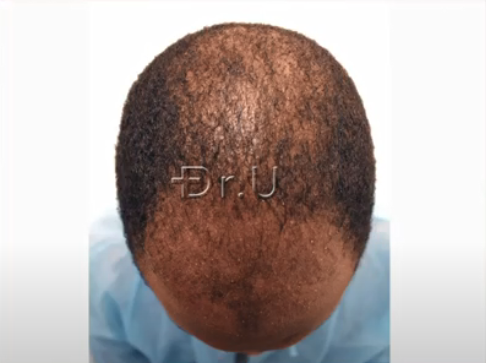 Top view of patient's head at the Norwood 5 hair loss level