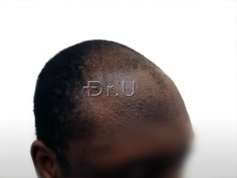 Right view of black male patient's receded temples