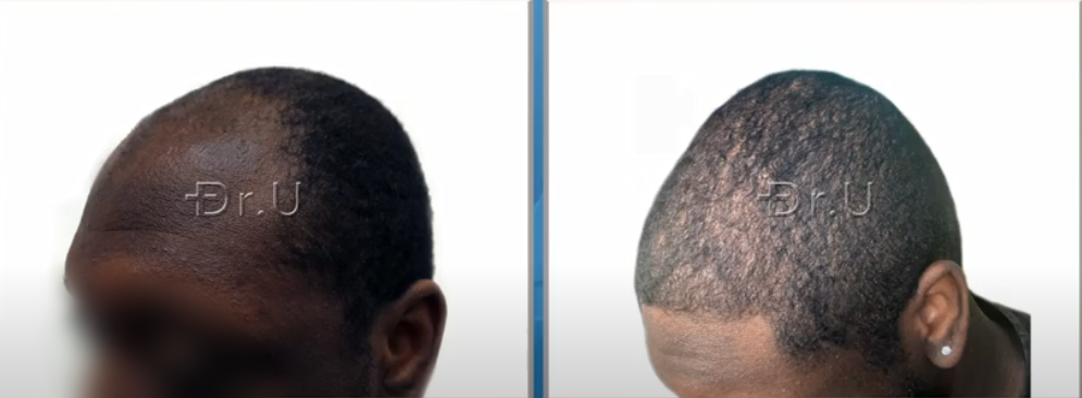 Left side view of black male patient's new hairline and temples. He now sports an age-appropriate appearance thanks to his hair transplant procedure performed by Dr. U