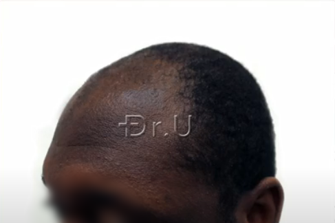 Left view of black male patient's receded temples