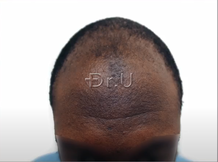 Patient's hairline had receded considerably causing him to appear much older than his actual age.