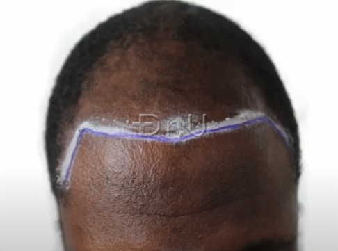 Dr.U planned a new hairline and temples to frame the patient's face and help him achieve a much younger looking appearance.