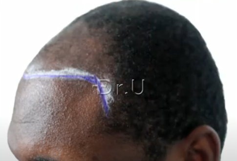 Left side view of Dr. Umar's planning for patient's hairline and temples