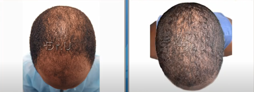 Top of black male patient's head now has more coverage through the use of just 3000 grafts