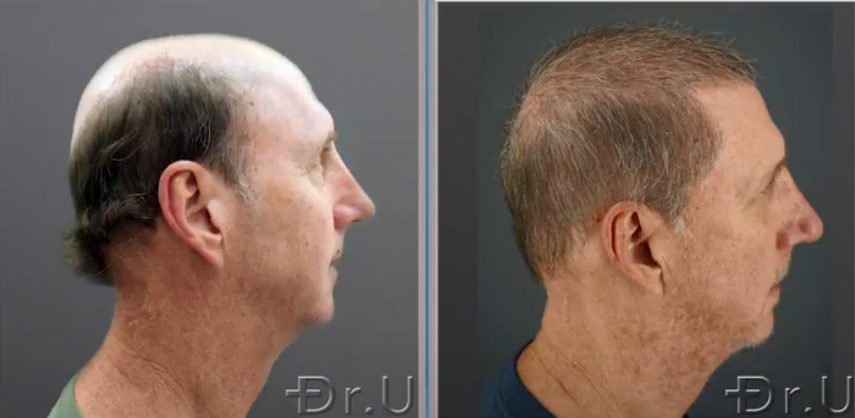 A side view of the patient's outcome shows an incredible improvement in his coverage after Dr UGraft Zeus severe baldness hair transplant