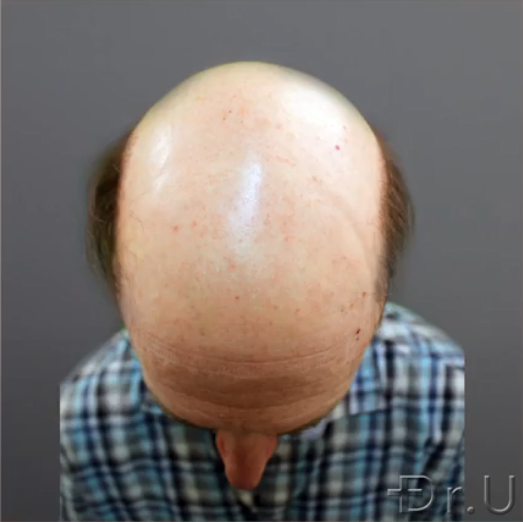 The top of the patient's head shows absolutely no hair growth