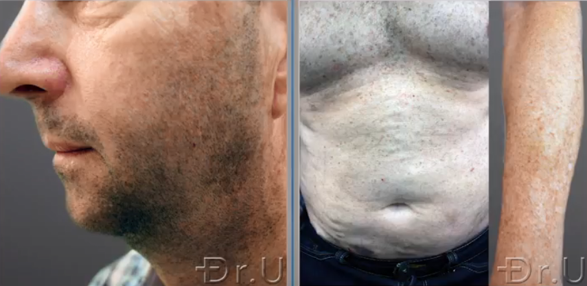 Donor hair was harvested from the hair transplant patient's face, torso, and arm