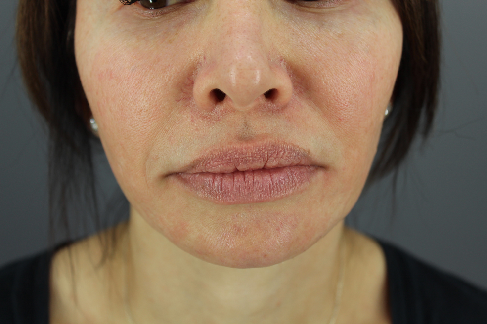Close up of patient's brown spots and redness before her Morpheus 8 procedure for the face