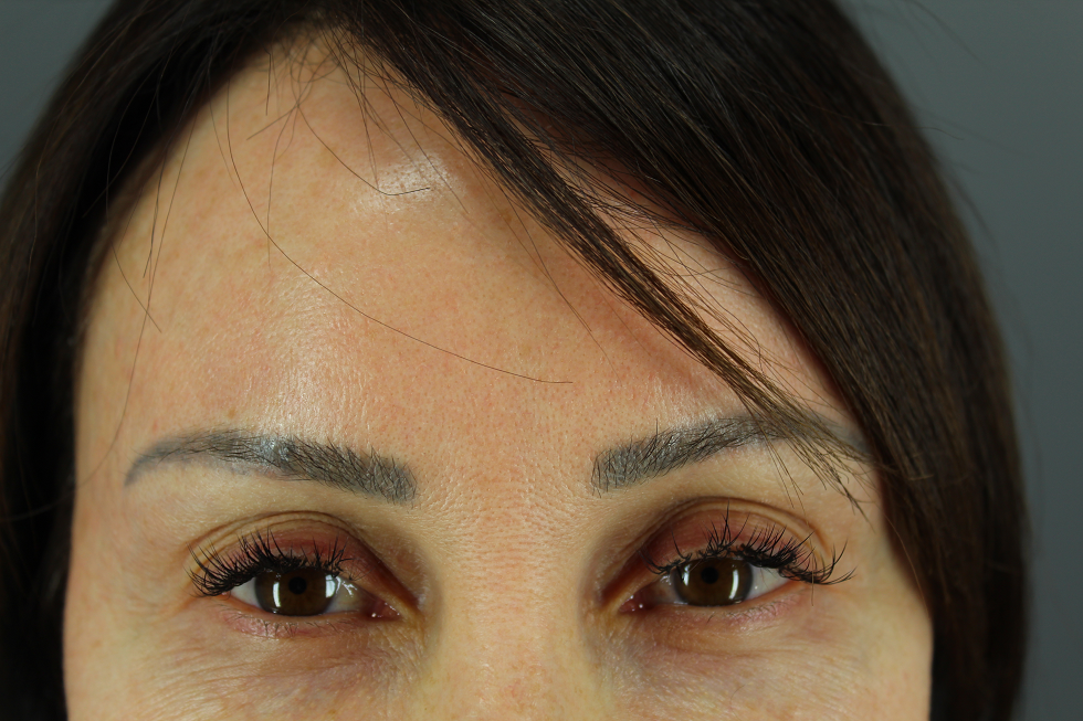 Patient hopes to get rid of unwanted discoloration on her forehead