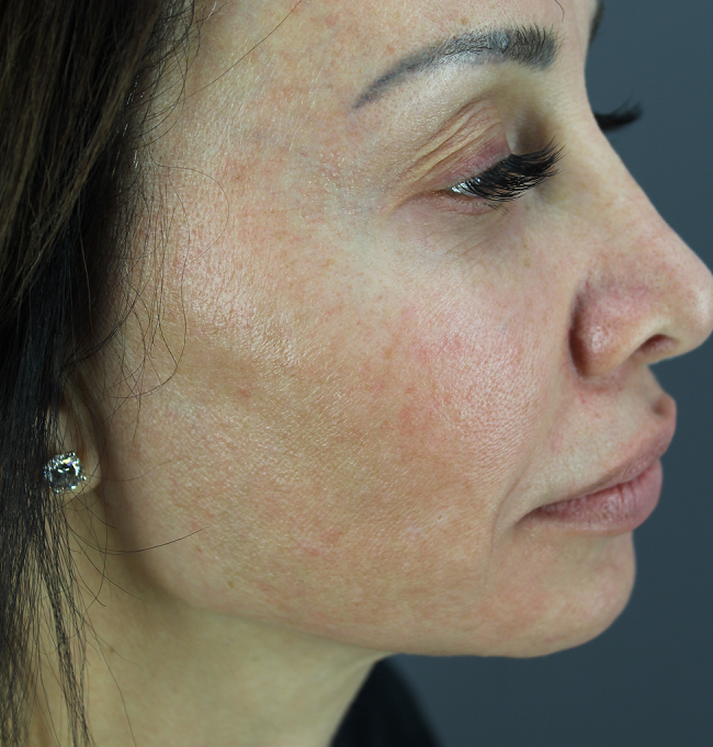 Profile view shows pronounced pigmentation and facial redness caused by sun exposure