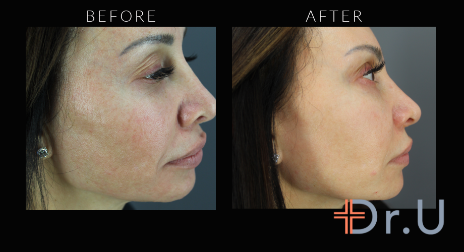 Profile View - Morpheus For Face Treatment