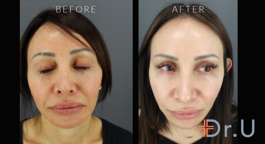 Morpheus for Face - Age Spots and Hyperpigmentation